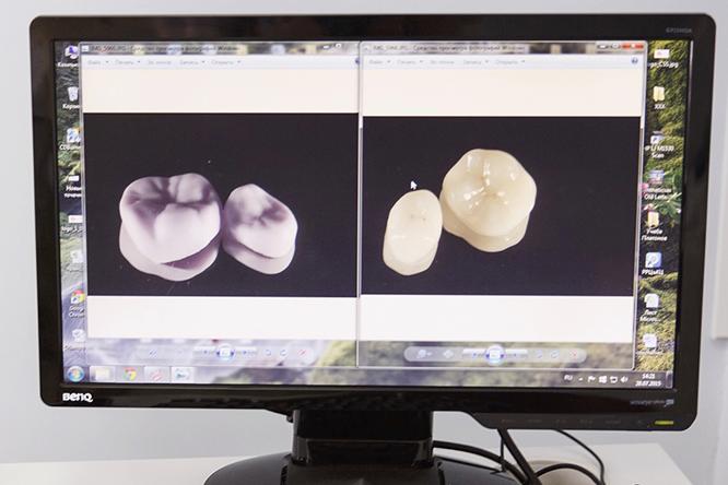 моделирование протеза зубов